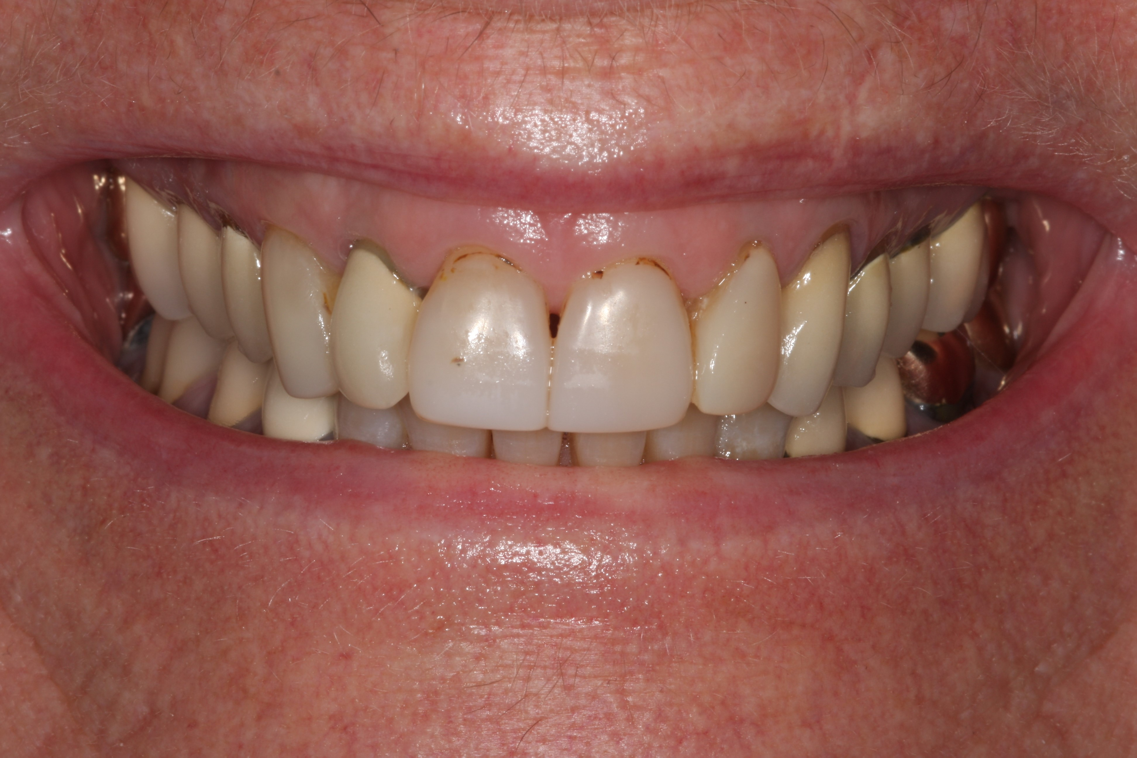 Dental Crown Before
