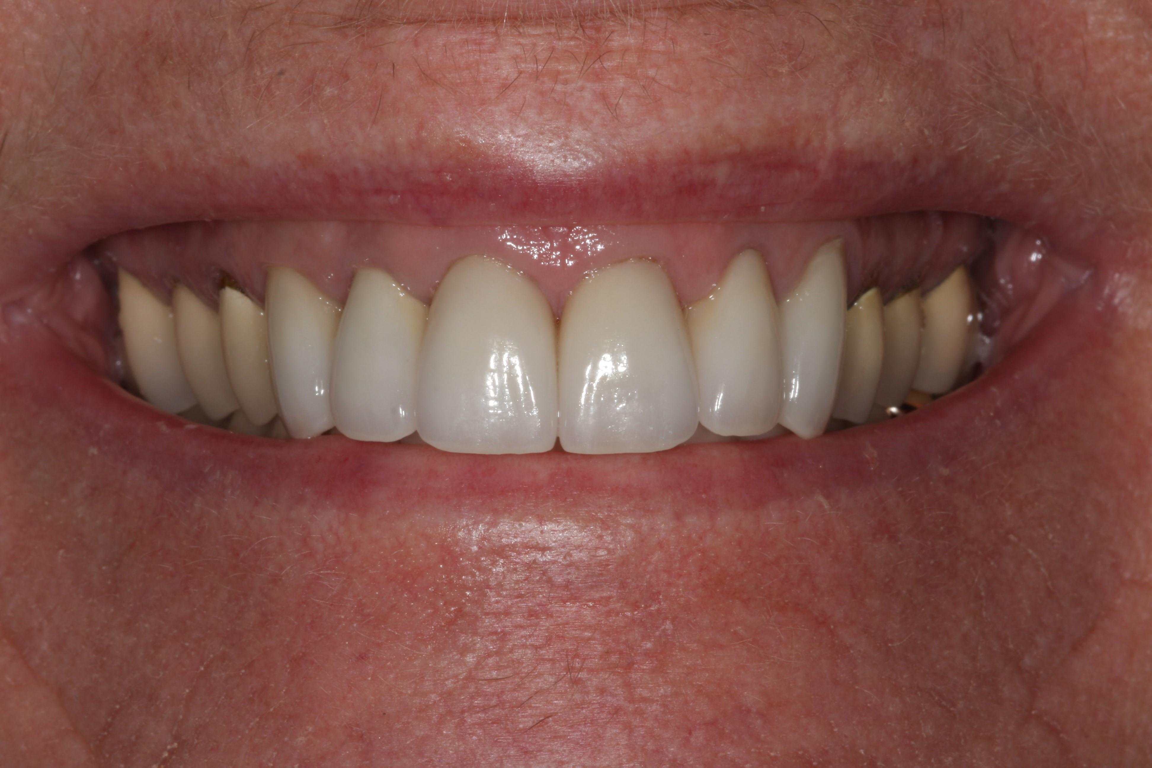 Dental Crown After