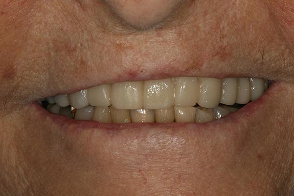 Removable-Partial-Denture-After