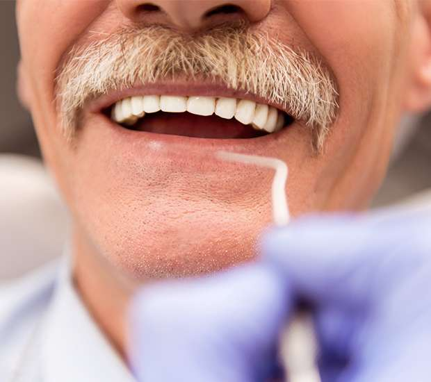 Newport Beach Adjusting to New Dentures