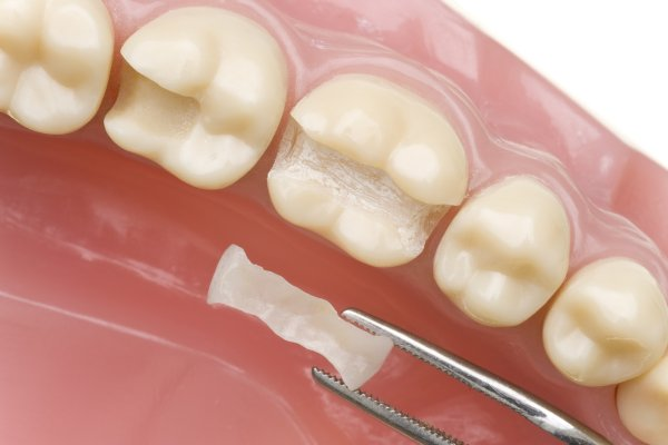 How To Take Care Of Your Metal Free Fillings