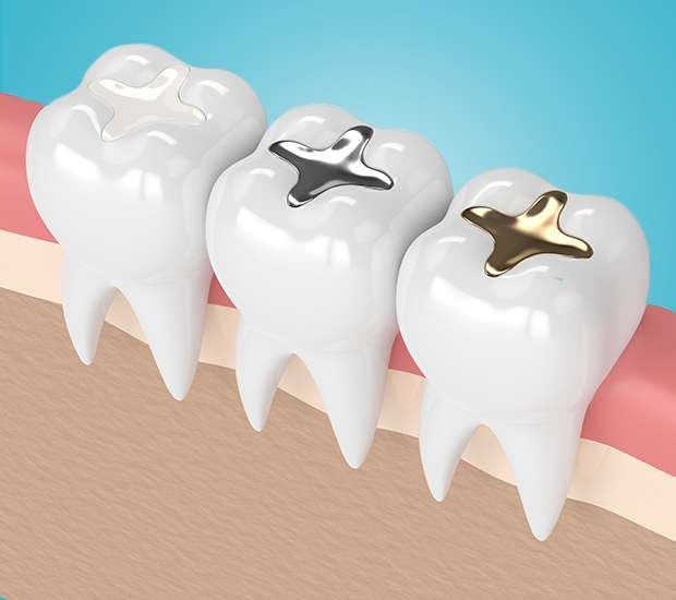 Newport Beach Composite Fillings