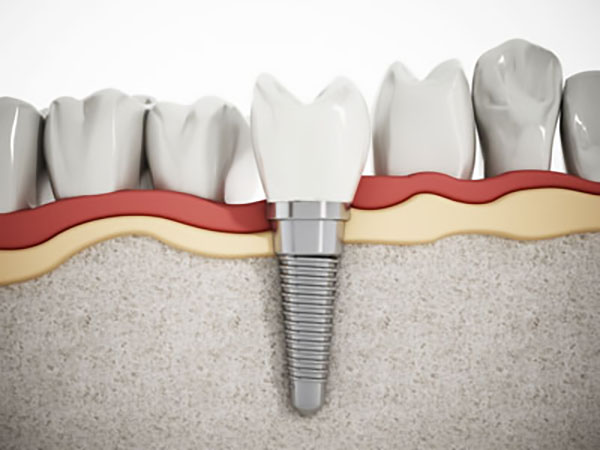 Implant Crowns: A Natural Looking Restoration