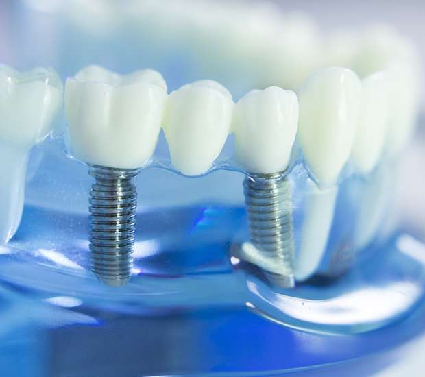 Newport Beach Dental Implants