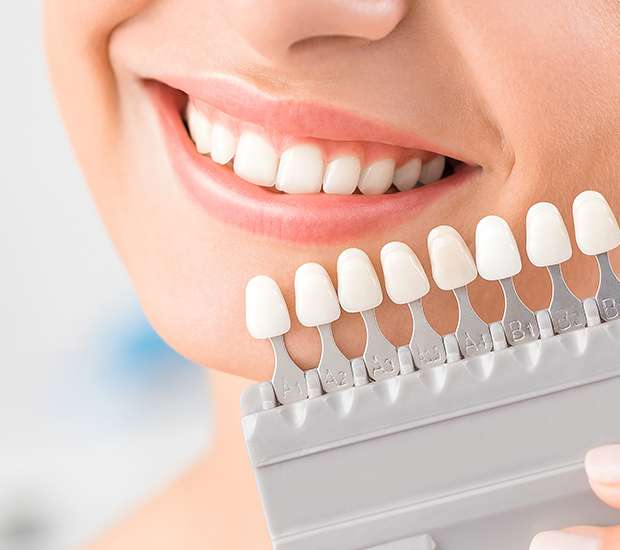 Newport Beach Dental Veneers and Dental Laminates