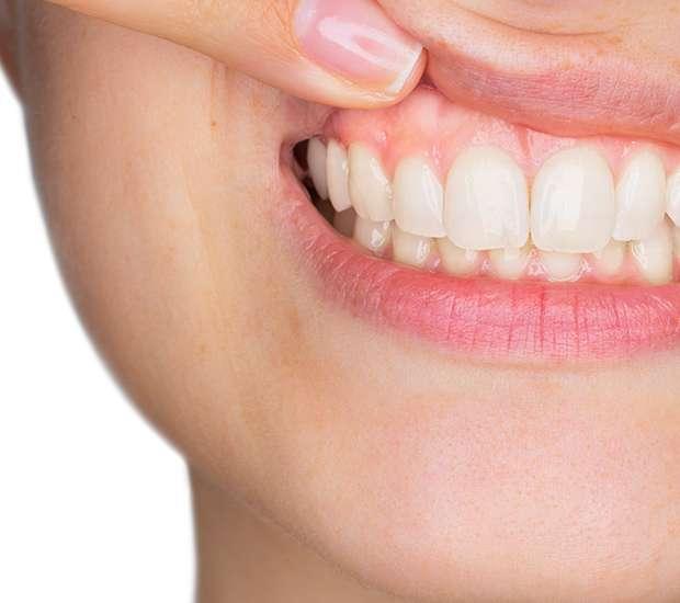 Newport Beach Gum Disease