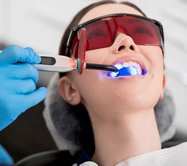 Newport Beach Professional Teeth Whitening
