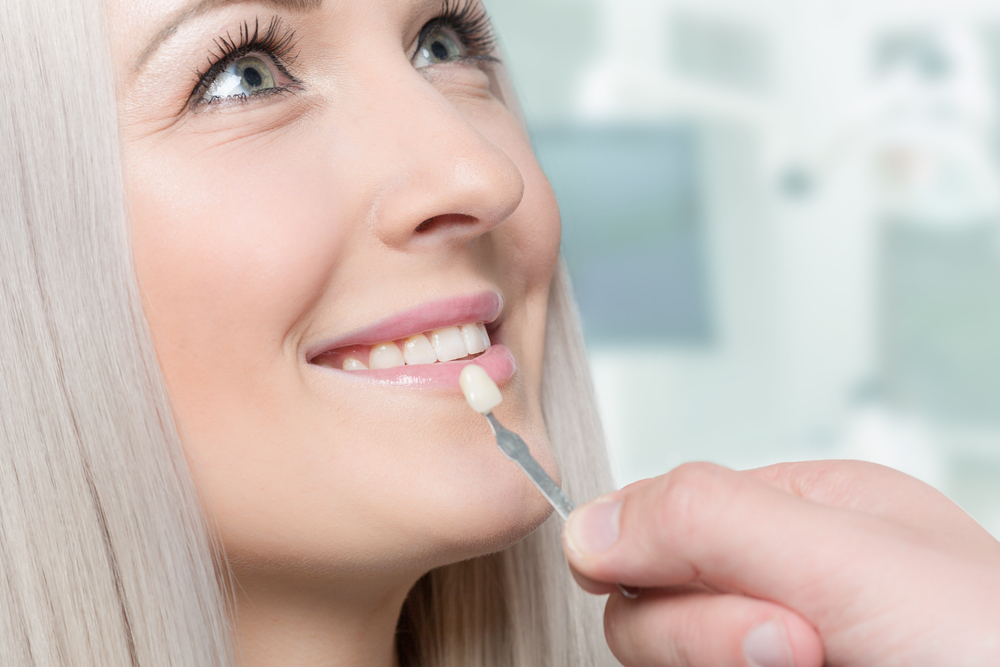 Leading Advantages Of Dental Implants