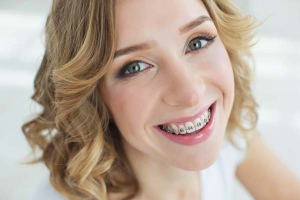 Braces: Before And After A Teeth Straightening Treatment